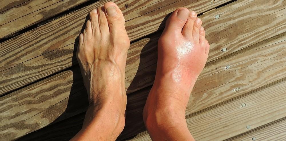 skausmas peties sąnario ir rankos tirpimo tepalas sąnariai