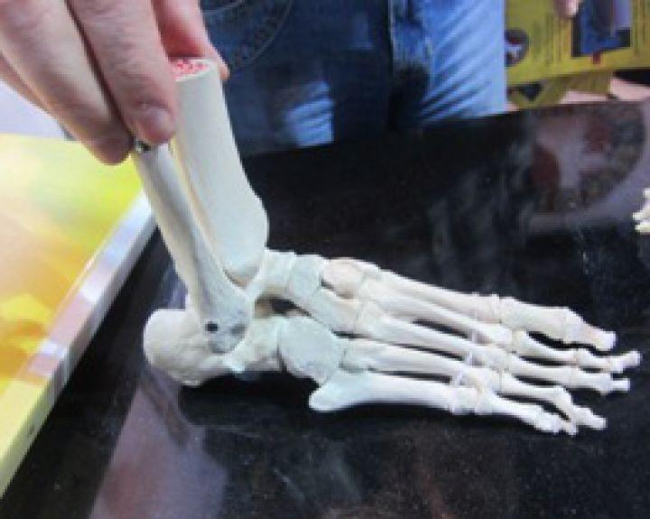 ką daryti jei nykščio sąnarys skauda ranka skausmas su pirštu sąnarių gydymo
