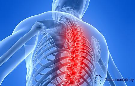 skausmas alkūnės sąnarių gydymas iš to ką atrodo artritu sąnarių