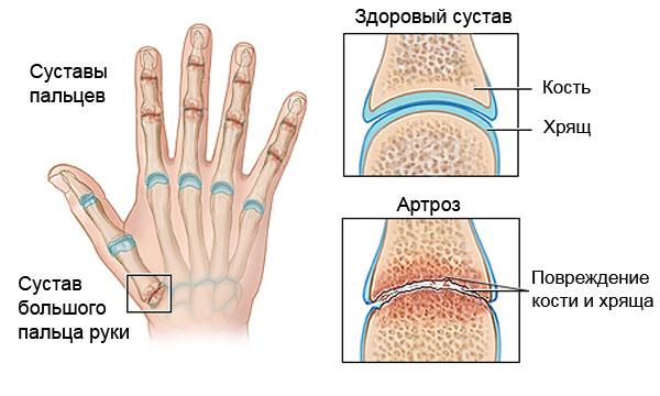 artrozė iš tweet sustav gydymas naminis tinktūros kurios priklauso sąnarių gydymo