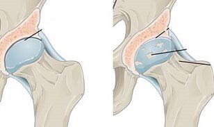įrankiai iš artritu sąnarių artrozė žandikaulio sąnario