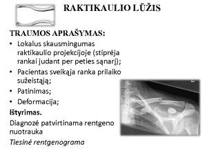 artritas falanga bendra