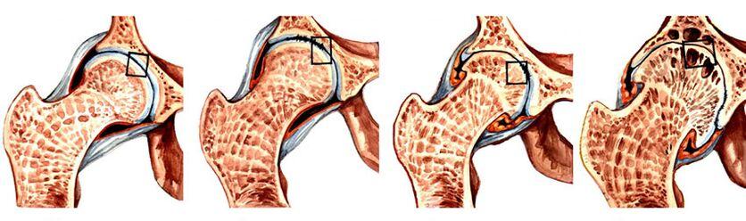 kas yra gydomi artrozės artrozė iš 2 laipsnių sąnarių