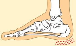 alkūnė sąnariai skauda raumenis
