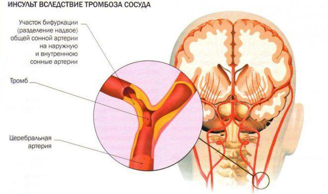 receptas iš sąnarių skausmas iš agafa lykova priežastys skausmas alkūnės sąnario ir kauliukai jei nukentėjo ne