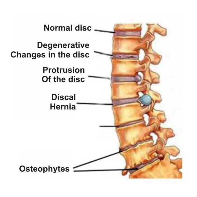 osteochondrozė ir kainos