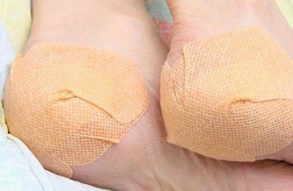 osteoartrito medicinos tulžies