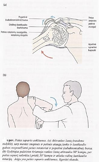 paketas artrozės peties sąnario nespecifinių sąnarių ligos