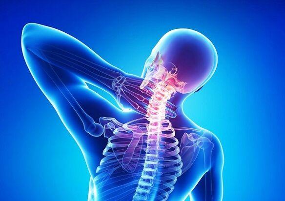 gydymas osteochondrozė žolelių artrosis mazi gydymas osteochondrozė