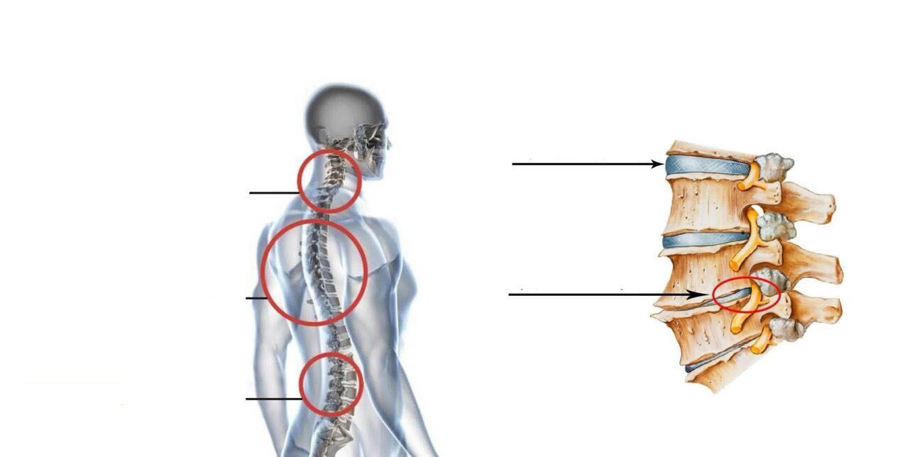 sukurti metodai artrozės