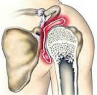 artrozė iš alkūnės sąnario simptomus