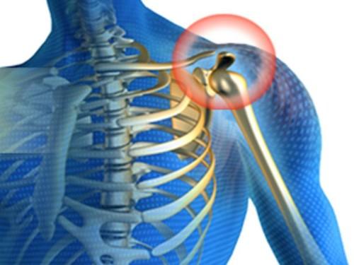skauda peties sąnario dešinįjį tepalą perdavimas skausmas bendra