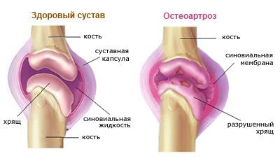 gerklės sąnarius nuo danties prevencija skausmo sąnariuose