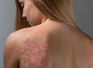 alkūnė uždegimas procesas skausmas alkūnės sąnario priežastis gydymas