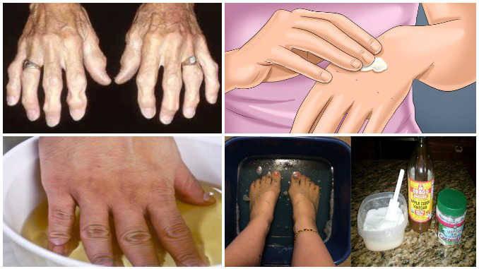 skausmas visiems sąnariai ir raumenys priežastys ir gydymas