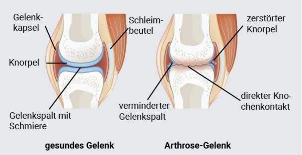 osteoartritas iš peties sąnario gydymo namuose