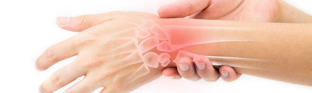 skausmas nuo priežastis ir gydymo tepalas ranka sąnarių