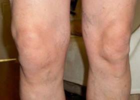 artrozės gydymas liaudies gynimo apžvalgos