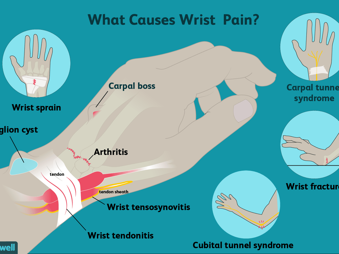 swelling joints in wrist canina petvital chondroitino ir gliukozamino vitaminų tabletės