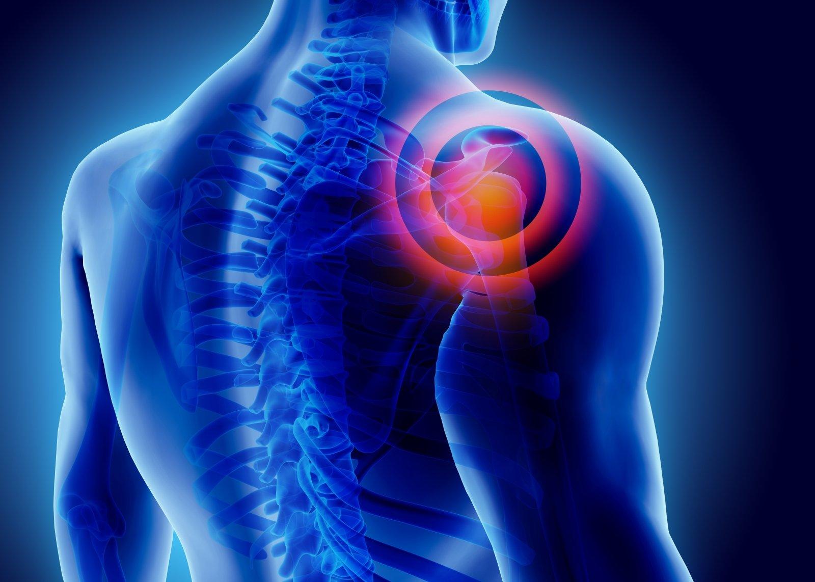kur kreiptis dėl skausmo peties sąnario