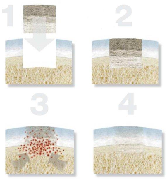 regeneravimas kremzlinio audinių