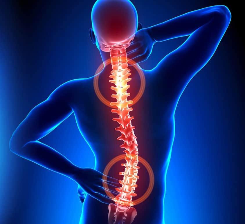 liaudies gynimo priemonės nuo kaklo osteochondrozės laikant skausmas alkūnės dešinę ranką