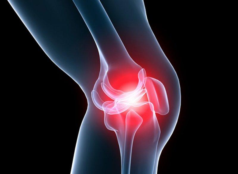 pašalinti vienintelis uždegimą artrito
