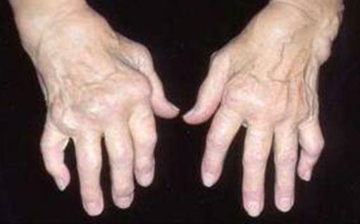 ligos nuo pavadinimų sąnarių lomit sąnarių ir skauda inkstus