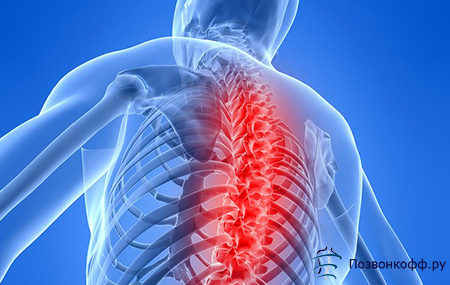 osteochondrozė apie į liaudies gynimo gydymo pirštais kaip pašalinti patinimas su pirštu artritas