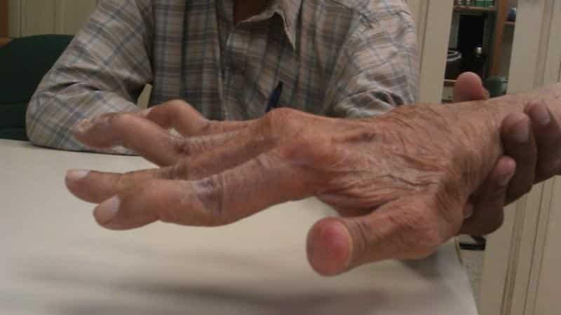 procedūros artrito jungtys dažų sąnarių skausmas