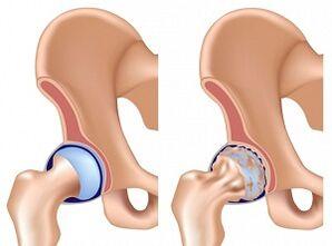 artrozės pradinis etapas gydymas liaudies gynimo priemonių gerklės sąnarių atsarginę gydymą