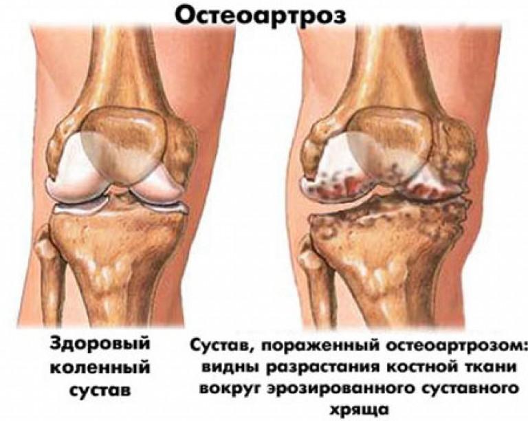 artrozė spin gydymas liaudies gynimo artritas ant paauglys pirštais