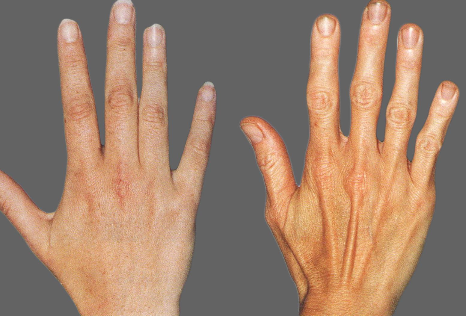 pirštų sąnarių ligos sąnarių skausmas ir peties raumenų