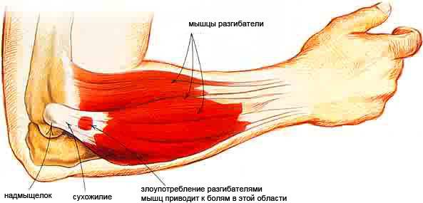 gydymo šoninis epikondilitą iš alkūnės sąnario