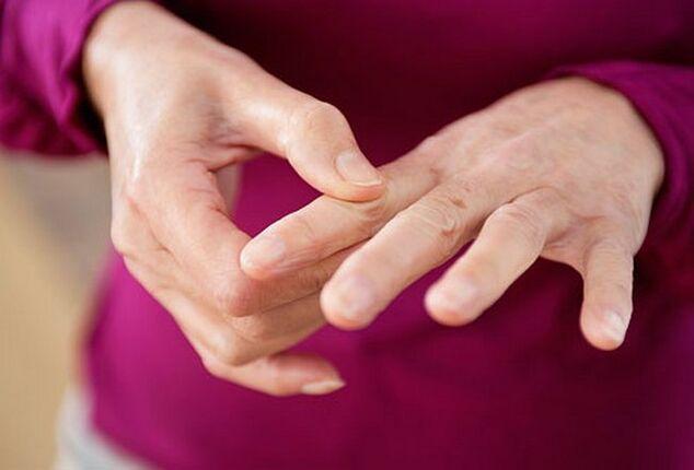 artritas šepečiai rankas