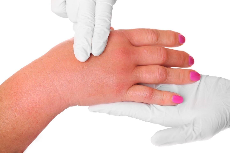 skauda sąnarį ant viduriniojo piršto dešinės rankos sukelia artritas rankų