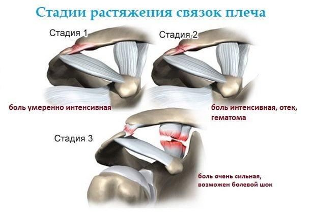 patempimų peties sąnario liaudies gynimo osteochondrozė tepalas ir tabletės