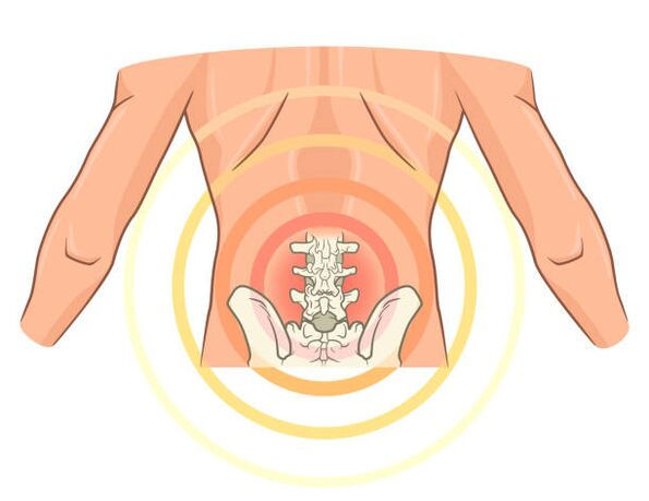 gydymas artrozė žolelėmis priežastys skausmas alkūnės sąnario raumenų