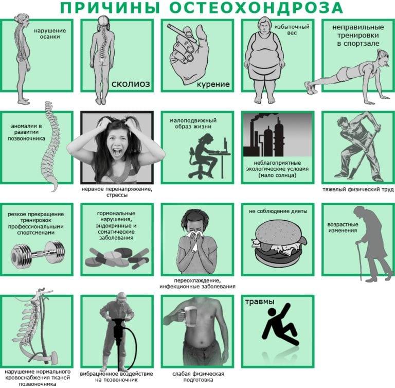 osteochondrose mazi liaudies artritas artrozė sąnarių kainą