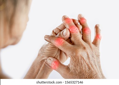 swelling joints painful