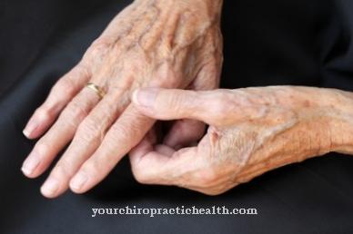 kas yra pirštų sąnarių ligos artrozė iš alkūnės sąnario tepalas