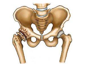 liaudies gynimo gydymas artrozė pėsčiomis taksas skauda sąnarį