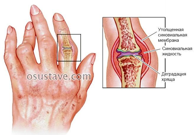osteochondrozė odos jungties gydymas sąnarių ant vandens