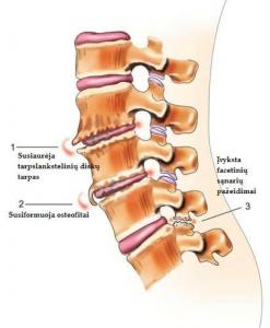 nugaros osteochondrozė kas tepalas padeda nuo osteochondrozės