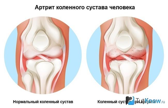 reumatinės skausmai sustava gydymas ankilose sustava