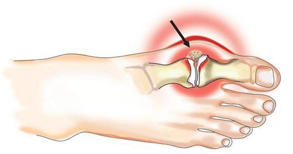 ilgalaikis skausmas alkoholizmas kaip pašalinti skausmą peties sąnario raumenų