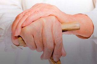 gydymas uždegimas alkūnės sąnario artrozė iš trečiojo laipsnio gydymo viršų