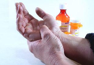 iš to ką kyla artrozės kad peties sąnario
