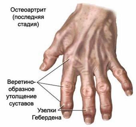 sąnarių liga po insulto artralgin iš sąnarių skausmas