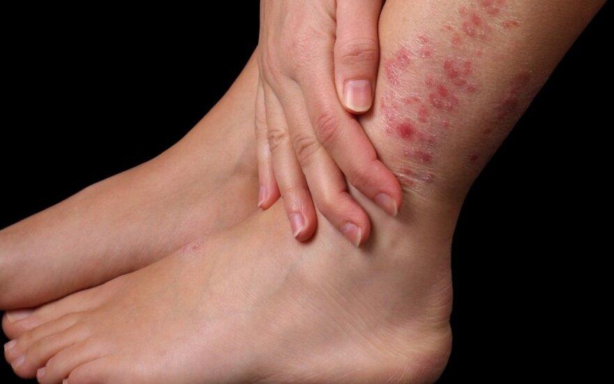 gydymas liaudies bendrų priemonėmis į ranką chondroitino ir sąnarių gydymas